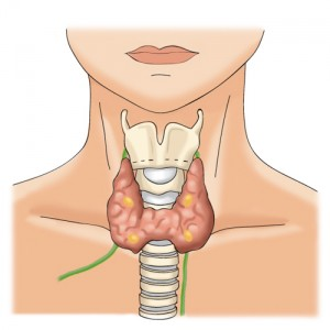 3.thyroideg