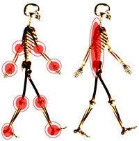 RAA rhumatisme articulaire aigu