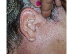 cicatrice six mois après l'intervention