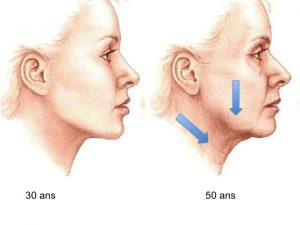 vieillissement du visage cou