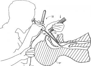 laryngoscopie directe