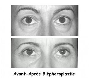 blepharo1