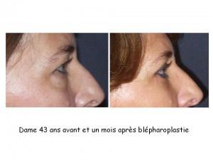 blepharo Dr JN