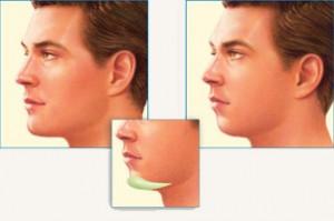 implant menton