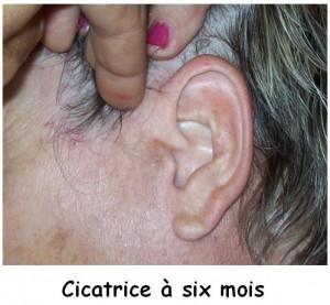 cicatrice-6-mois2