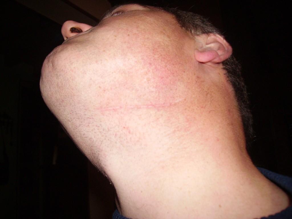Fait mal le cou par derrière entre les omoplates