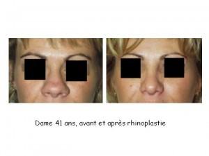 dame-41-avant-apres-300x225