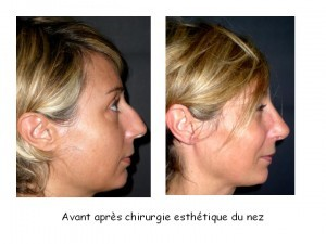 résultats rhinoplastie esthétique