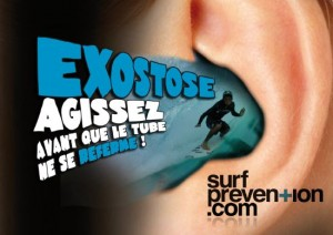 exostose conduit maladie surfeur