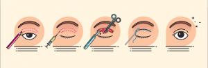 description chirurgie paupières supérieures