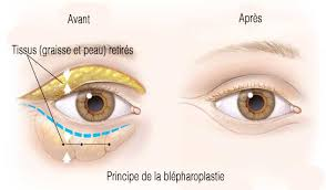 principe blépharoplastie chirurgie paupières