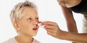 épistaxis saignement nez