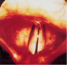 laryngite