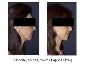 lifting-patient-22-300x225