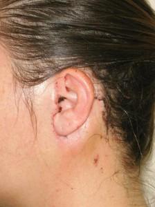 parotidectomie cicatrice
