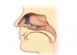 polype dans le nez