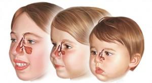sinusite-enfant-et-bebe developpement sinus age