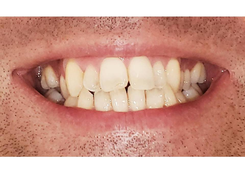 chevauchement dents