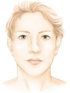 nez dévié en C en J rhinoplastie