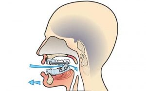 orthèse d'avancée mandibulaire