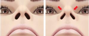 valve nasale interne externe rhinoplastie